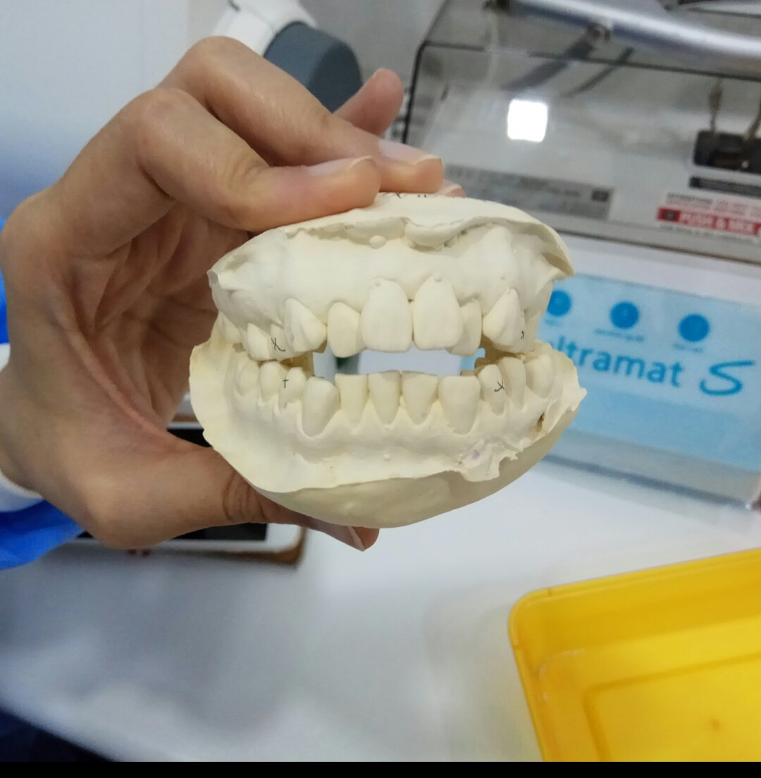 3 Things to Know About Braces Cost in Malaysia - Ringgit Oh
